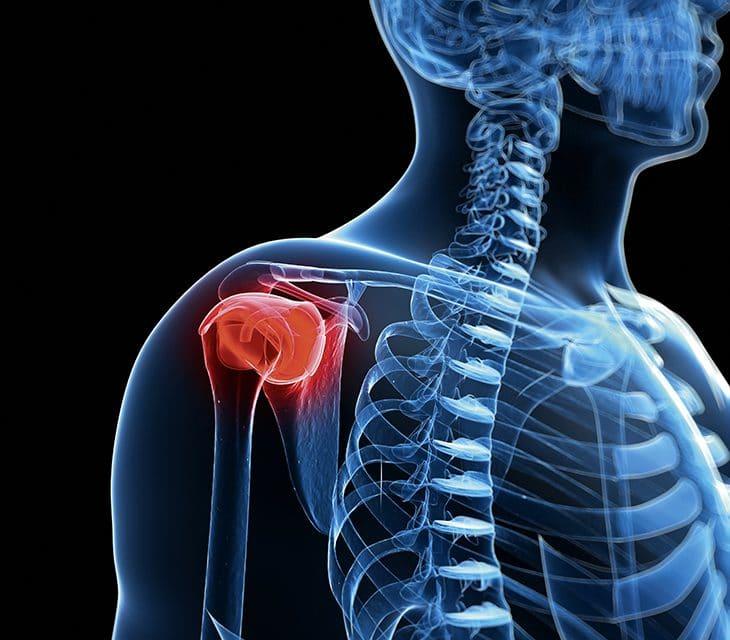 Frozen Shoulder – wenn die Schulter einfriert